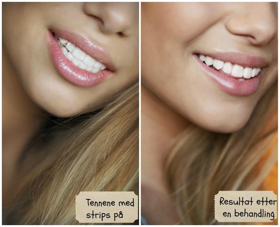 dentway whitening strips