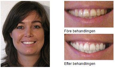 dentway tandblekning recension